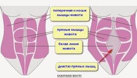 Recommended_diastaz-pryamykh-myshc-zhivota-posle-rodov-kompleksnaya-sistema-uprazhnenij